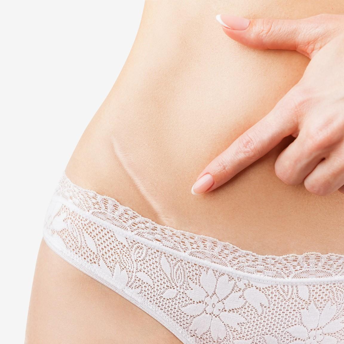 Hautkrebs und Hautveränderung behandeln