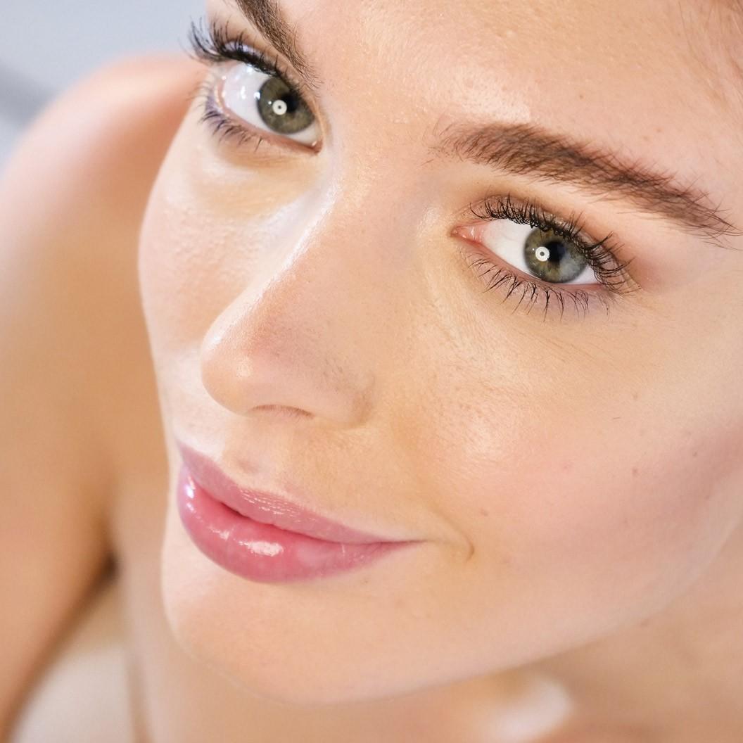 Lippenunterspritzung Hyaluron bei Frauen