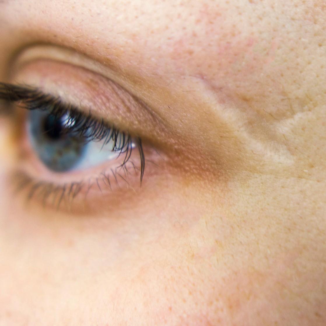 Narben korrigieren und Aussehen verbessern